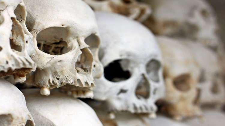 فك لغز التشوهات النادرة للرفات البشرية القديمة