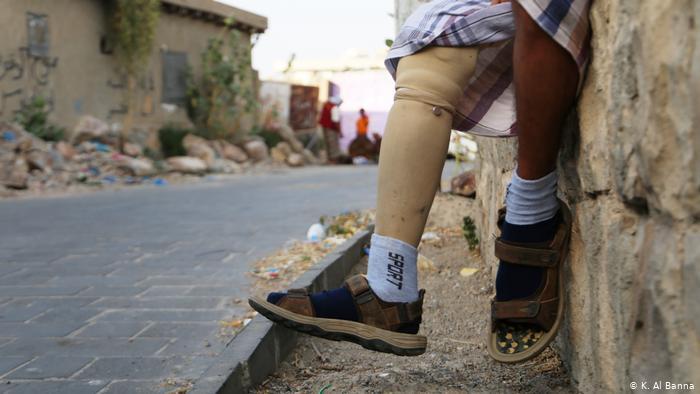 Yemen - Opfer von Minen: Hussein al-Humiri (K. Al Banna)
