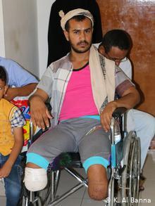Yemen - Opfer von Minen (K. Al Banna)
