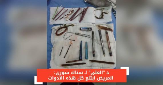 سوريا: عملية جراحية لإزالة أقلام وحبكات شعر من أمعاء شاب عشريني
