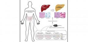 علماء صينيون يكتشفون سبب مرض غامض يصيب الكبد