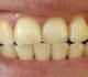 ما هي ابرز اسباب وطرق علاج اصفرار الاسنان المختلفة؟